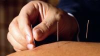 Acupuncture classique